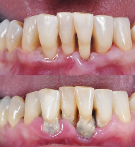 iStock_000035752420Large (Periodontal disease)