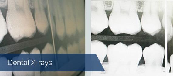 9-Dental-X-rays